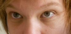 Dark circles (cropped).png