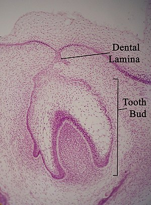 Dental lamina - Micrograph of a dental lamina and tooth bud. H&E stain.