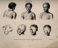 Diagrams illustrating; bandaged heads and upper body Wellcome V0016828.jpg