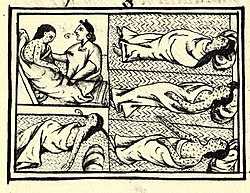 https://upload.wikimedia.org/wikipedia/commons/thumb/7/7d/FlorentineCodex_BK12_F54_smallpox.jpg/250px-FlorentineCodex_BK12_F54_smallpox.jpg