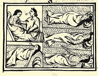 Smallpox depicted by an indigenous artist in the 1556 Florentine Codex in its account of the conquest of Mexico from the point of view of the defeated Mexica. FlorentineCodex BK12 F54 smallpox.jpg
