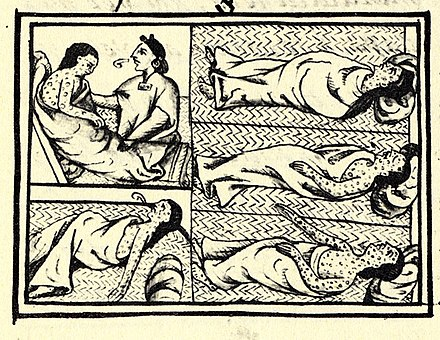 Nahua depiction of smallpox, Book XII on the conquest of Mexico in the Florentine Codex (1576) FlorentineCodex BK12 F54 smallpox.jpg