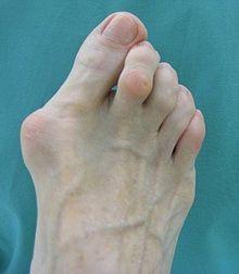 Die Gelenkdeformierung des Fingers