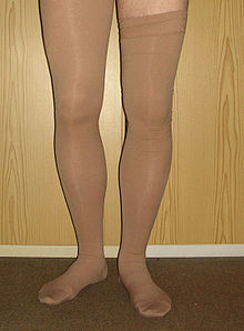17072a9e6 Compression stockings - Wikipedia