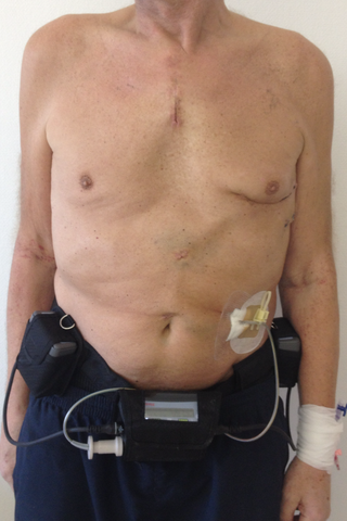 Left ventricular assist device hannover