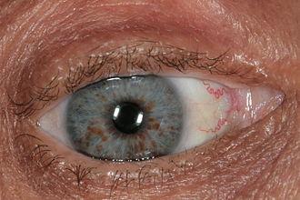 Lisch nodule - Lisch nodules on surface of iris