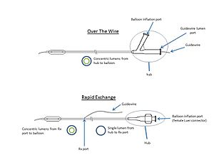 Balloon catheter - Anatomy of OTW vs. Rx balloon catheter
