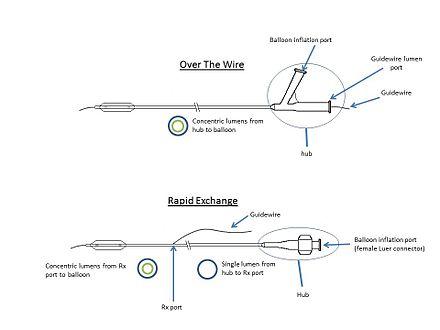 Balloon catheter - WikiwandWikiwand
