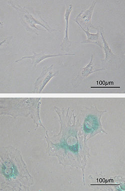 Cellular senescence(upper) Primary mouse embryonic fibroblast cells (MEFs) before senescence. Spindle-shaped. (lower) MEFs became senescent after passages. Cells grow larger, flatten shape and expressed senescence-associated β-galactosidase (SABG, blue areas), a marker of cellular senescence.