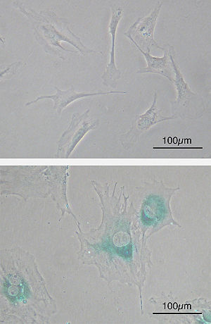 Senescence - Cellular senescence (upper) Primary mouse embryonic fibroblast cells (MEFs) before senescence. Spindle-shaped. (lower) MEFs became senescent after passages. Cells grow larger, flatten shape and expressed senescence-associated β-galactosidase (SABG, blue areas), a marker of cellular senescence.