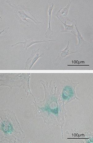 Cellular senescence - Cellular senescence (upper) Primary mouse embryonic fibroblast cells (MEFs) before senescence. Spindle-shaped. (lower) MEFs became senescent after passages. Cells grow larger, flatten shape and expressed senescence-associated β-galactosidase (SABG, blue areas), a marker of cellular senescence.