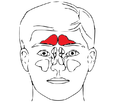 Sinus frontalis in red.png