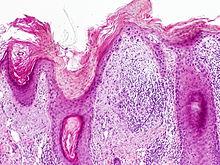 Actinic keratosis - Wikipedia