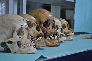 Forensic facial reconstruction - Skulls for Facial Approximation