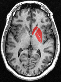 This is a transverse section of the striatum from a structural MR image. The striatum includes the caudate nucleus and putamen. The image also includes the globus pallidus, which is sometimes included when using the term corpus striatum.