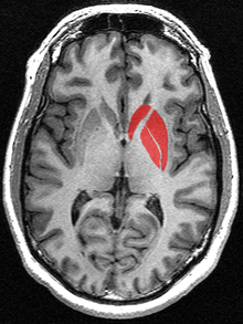 This is a transverse section of the striatum from a structural MR image. The striatum includes the caudate nucleus (top) and putamen (right) and the globus pallidus (left).