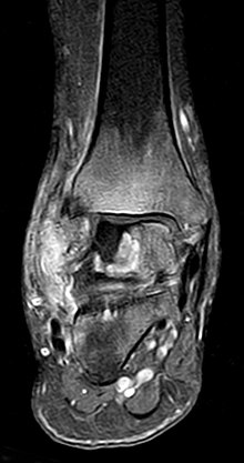 Osteonekrose Fuß