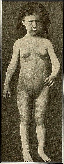 Precocious puberty - Wikipedia