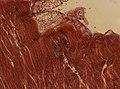 Trichinella spiralis (YPM IZ 095182).jpeg