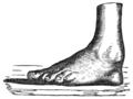 A descriptive catalogue of the Warren Anatomical Museum - p 324.png