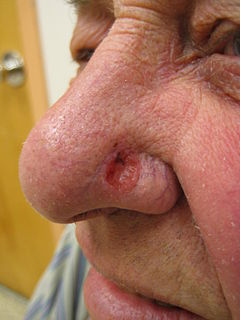 Basal-cell carcinoma A subtype of basal-cell carcinoma most commonly occurring on the sun-exposed areas of the head and neck