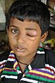 Boy with Eye Infection - Shyambati - Birbhum 2014-06-29 5480.JPG