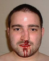 Fractured nose with haemorrhage.