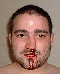bakre näsblödning orsak