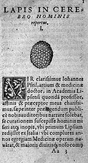 Calcified tumour of the brain, Conrad Gesner, 16th Century Wellcome L0005607.jpg
