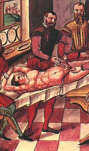 Castration - The procedure of castration as punishment during the 16th century.