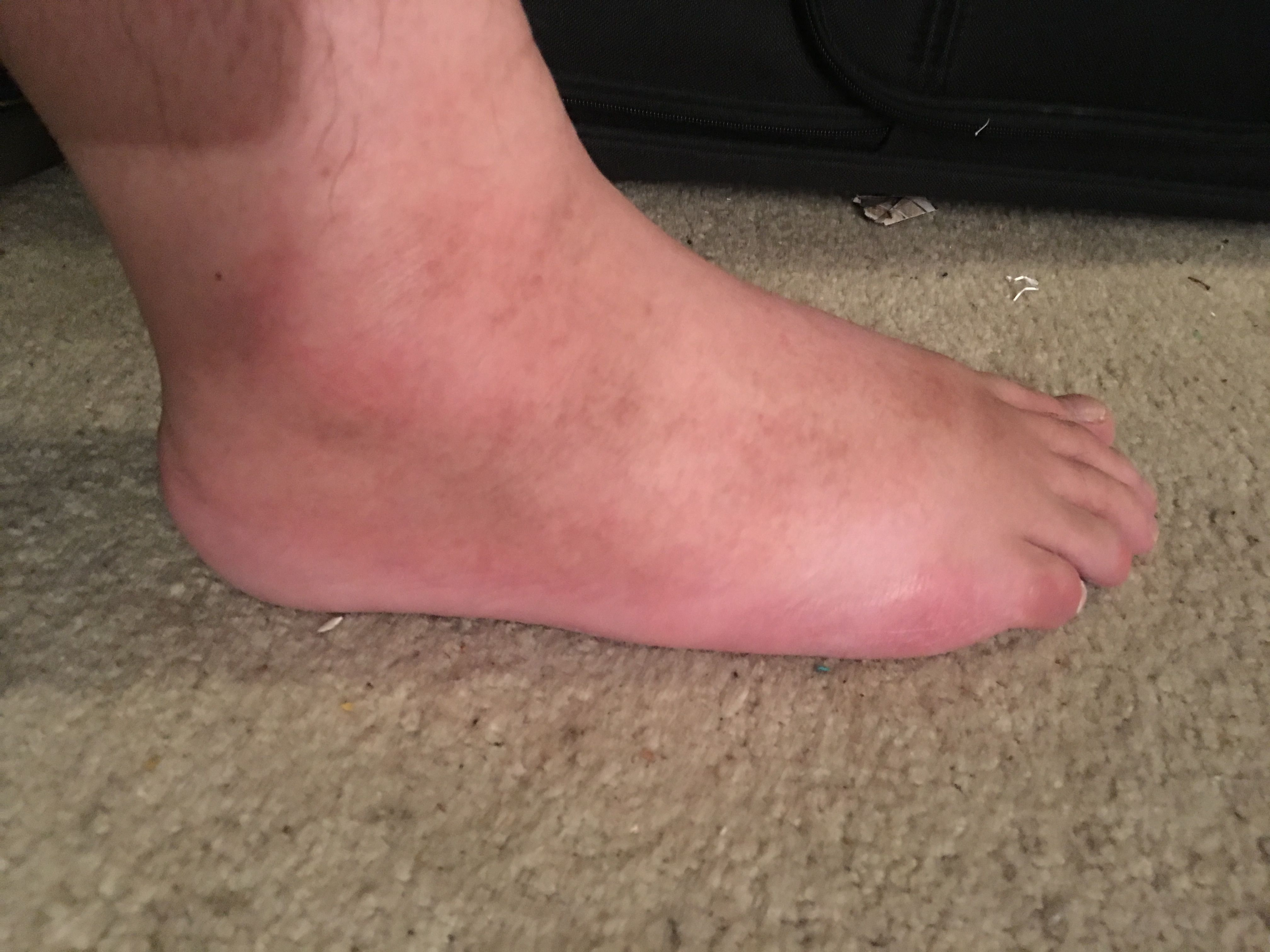 File:Cellulitis of foot 02.jpg - Wikimedia Commons