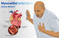 Depiction of a person suffering from a heart attack (Myocardial Infarction).png