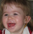 Facial Features of a Child with 1p36 Deletion Syndromel.png