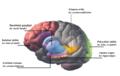 Galvos smegenys (šizofrenija). Iliustracijos.g.png