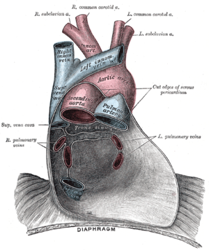 Pericardial sinus - Posterior wall of the pericardial sac, showing the lines of reflection of the serous pericardium on the great vessels. (Transverse sinus labeled at center. Oblique sinus not labeled, but visible inferior to transverse sinus between the right and left pulmonary veins)