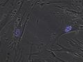 HEL cells + PML3 eCFP.png