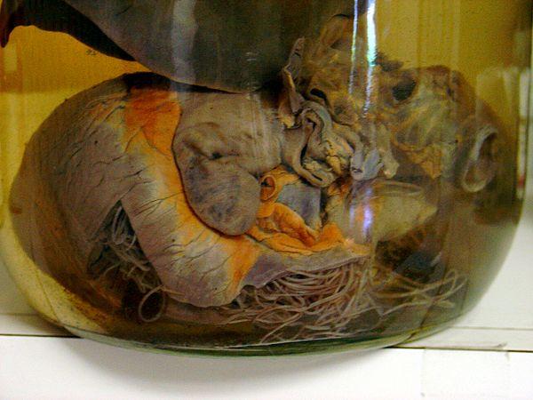 documents identification avian malaria plasmodium canine heartworm