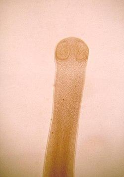 Hymenolepis diminuta scolex.jpg