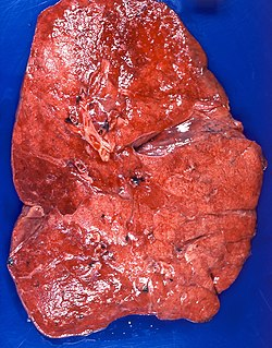 Lipid pneumonia, exogenous Case 108 (3791887810).jpg