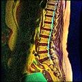 Lumbosacral MRI case 05 06.jpg