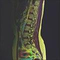 Lumbosacral MRI case 13 03.jpg