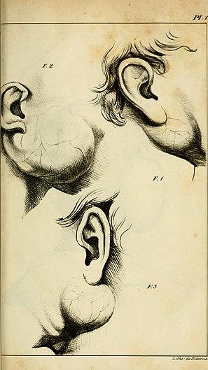 Maladies de la glande parotide et de la région parotidienne - opérations que ces maladies réclament (1841) (14595052960).jpg