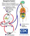 Naegleria fowleri infection gl.png