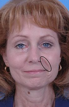 facial exercises for nasolabial lines