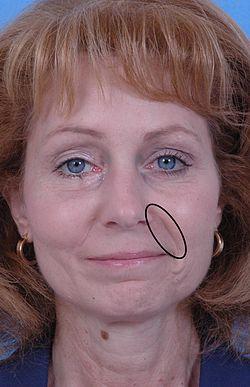 Nasolabial fold - Wikipedia