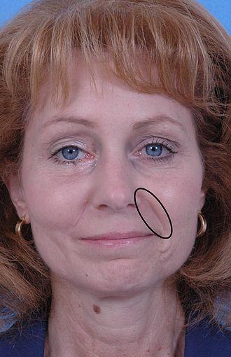 Nasolabial fold - Human face, with left nasolabial fold marked in black ellipse