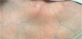 PMC3567970 1752-1947-7-35-1 (cropped).png