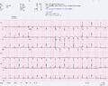 Pericardial effusion with tamponade.png