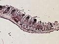 Pleioplana atomata (YPM IZ 073711) 02.jpeg