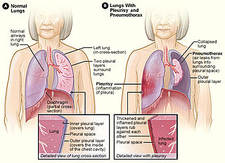 Pleurisy pleural disease that is characterized by swelling, due to inflammation of the pleura, the lining of the pleural cavity surrounding the lung or lungs.